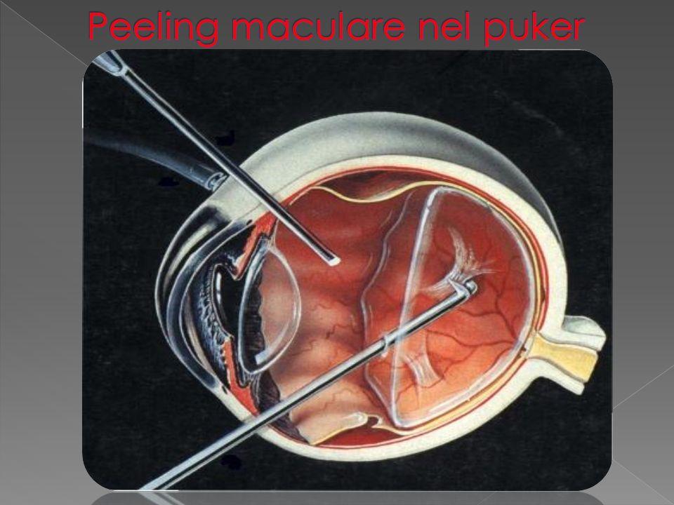 Peeling maculare nel puker