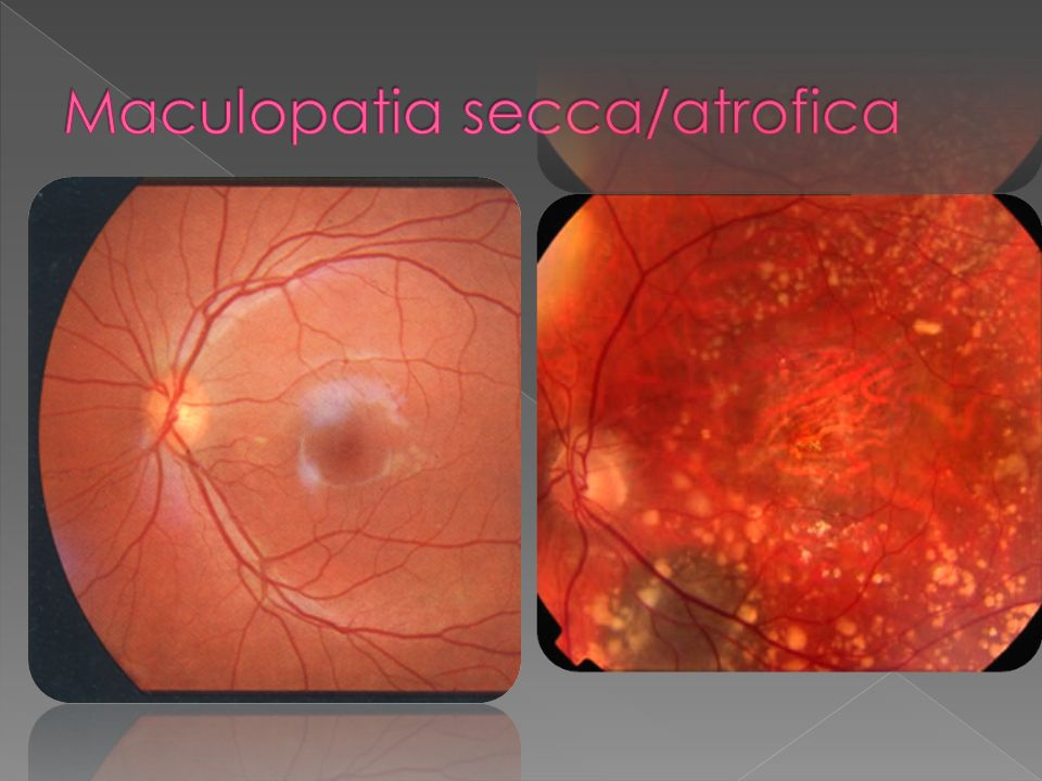 Maculopatia secca/atrofica