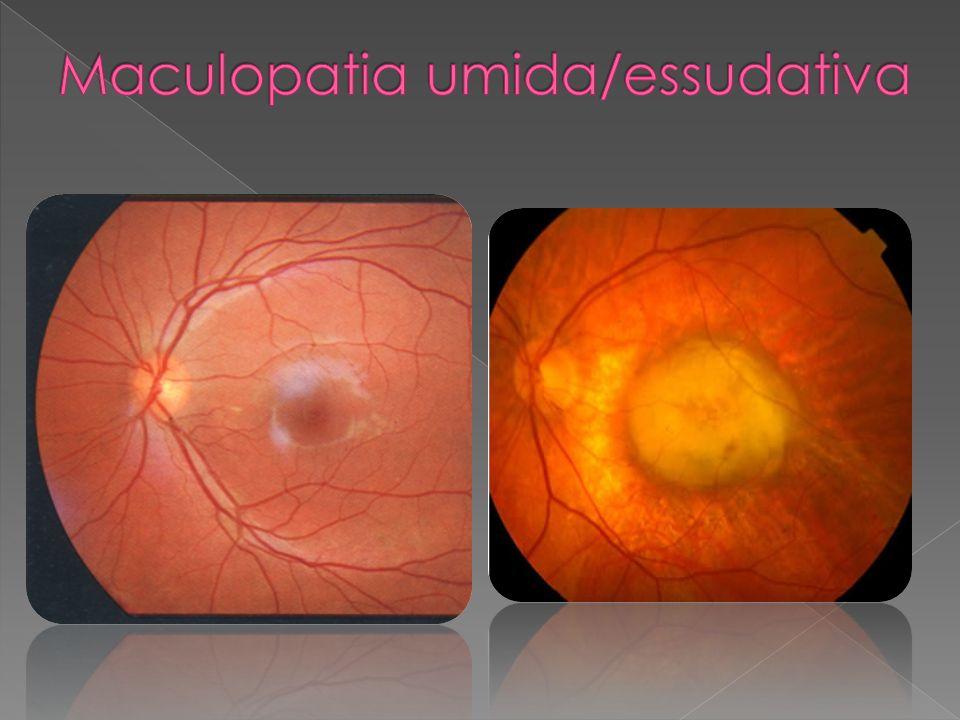 Maculopatia umida/essudativa