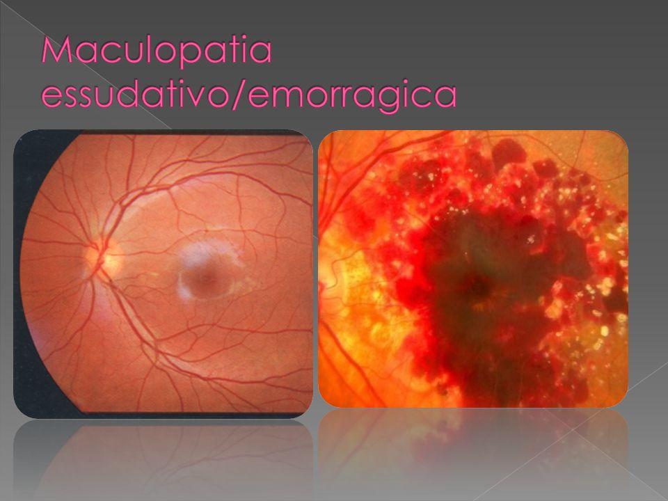 Maculopatia essudativo/emorragica