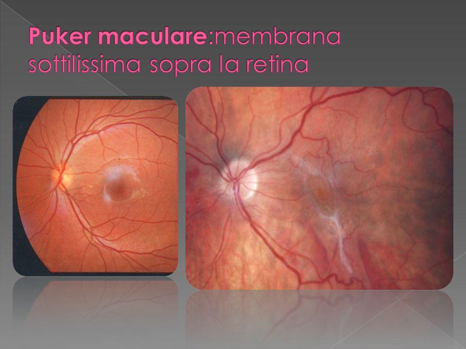 Puker maculare:membrana sottilissima sopra la retina