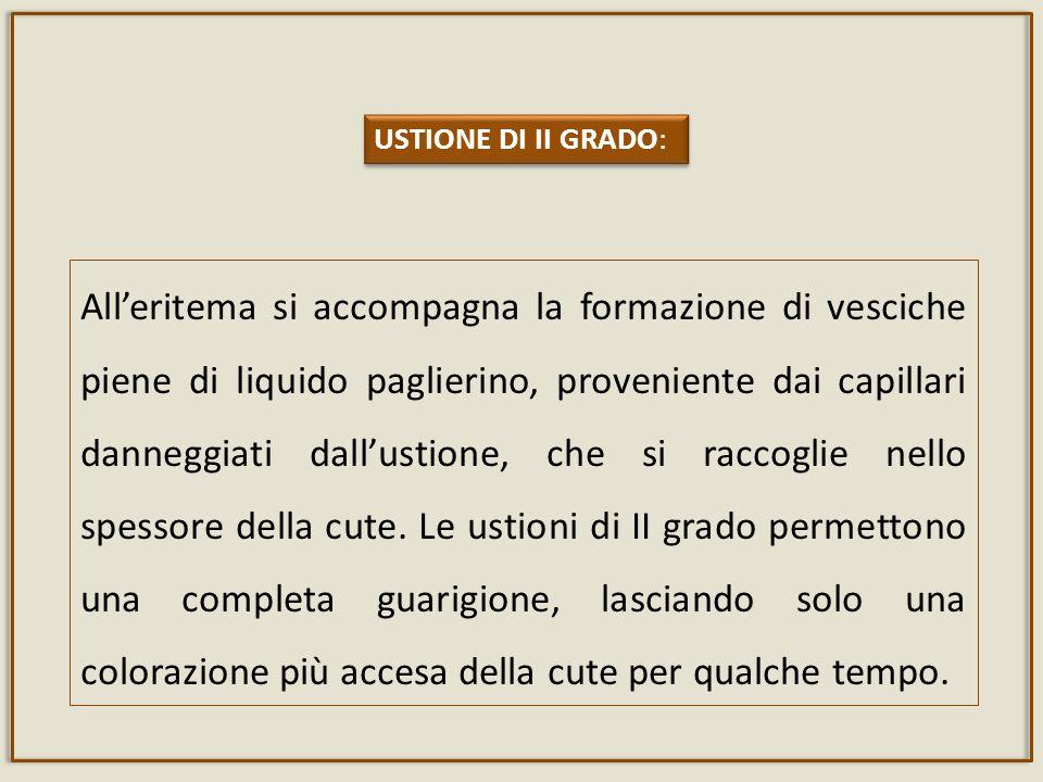 USTIONE DI II GRADO: