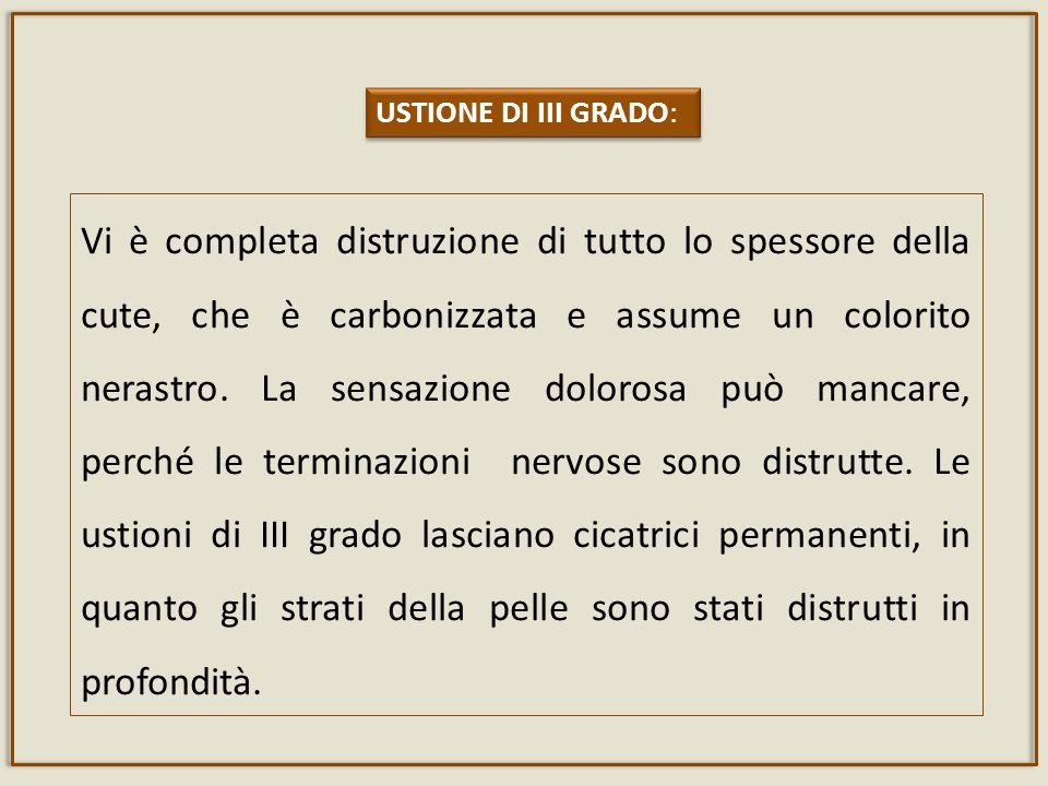USTIONE DI III GRADO: