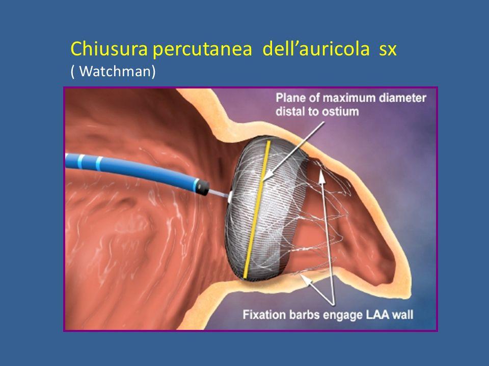 Chiusura percutanea dell'auricola sx