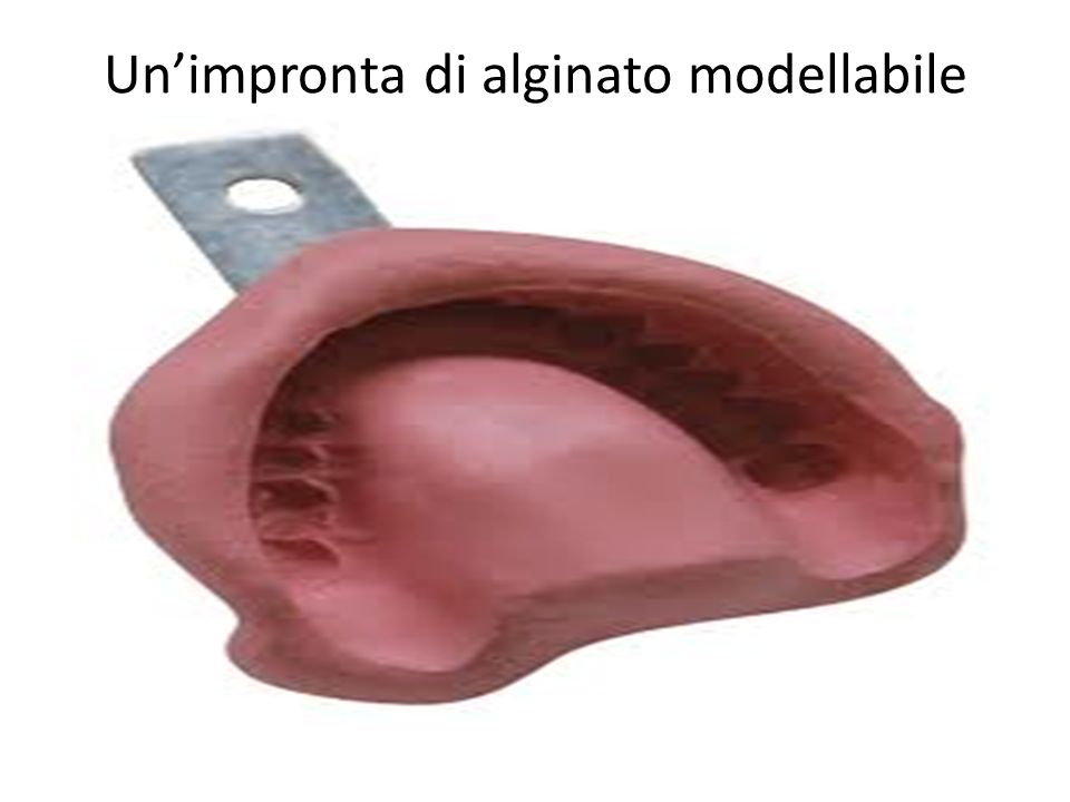 Un'impronta di alginato modellabile