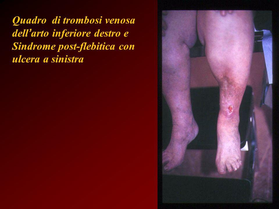 Quadro di trombosi venosa dell'arto inferiore destro e Sindrome post-flebitica con ulcera a sinistra