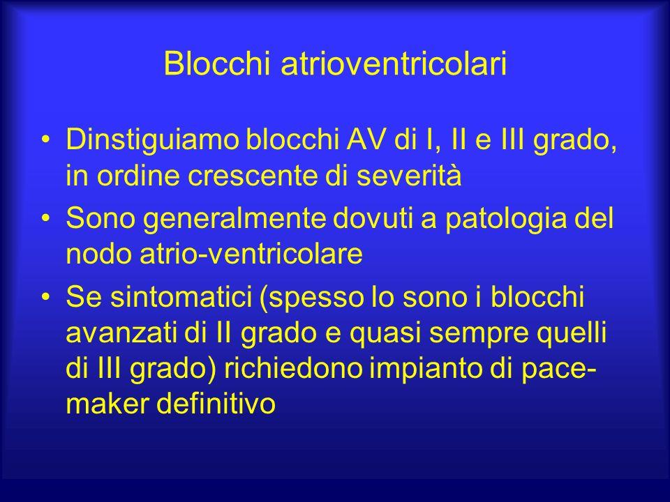 Blocchi atrioventricolari
