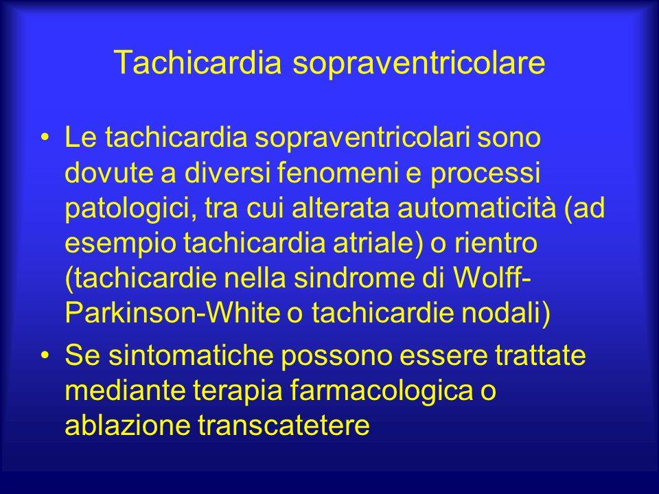 Tachicardia sopraventricolare