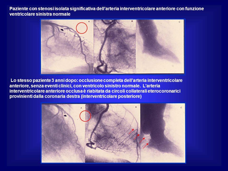 Paziente con stenosi isolata significativa dell'arteria interventricolare anteriore con funzione ventricolare sinistra normale