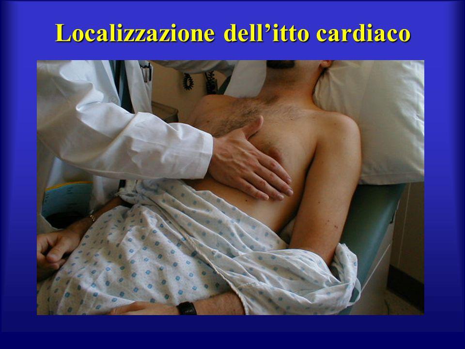 Localizzazione dell'itto cardiaco