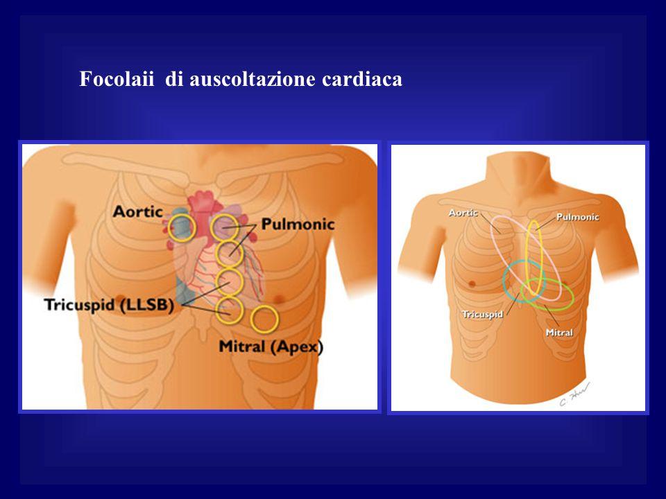 Focolaii di auscoltazione cardiaca