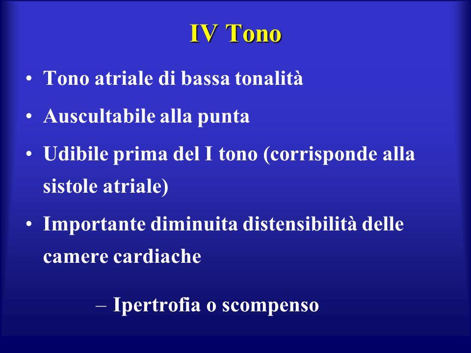IV Tono Tono atriale di bassa tonalità Auscultabile alla punta