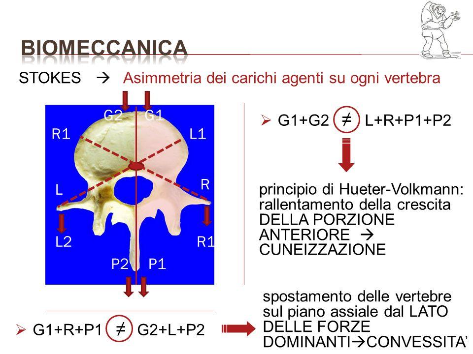 BIOMECCANICA STOKES  Asimmetria dei carichi agenti su ogni vertebra