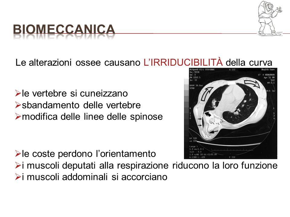 bioMECCANICA Le alterazioni ossee causano L'IRRIDUCIBILITÀ della curva
