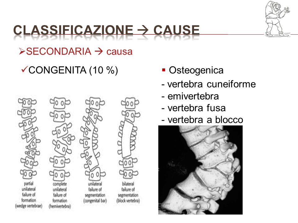 Classificazione  cause
