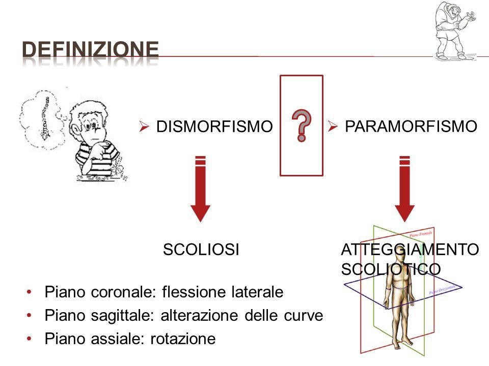 definizione DISMORFISMO PARAMORFISMO SCOLIOSI ATTEGGIAMENTO SCOLIOTICO
