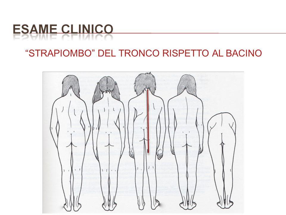 STRAPIOMBO DEL TRONCO RISPETTO AL BACINO