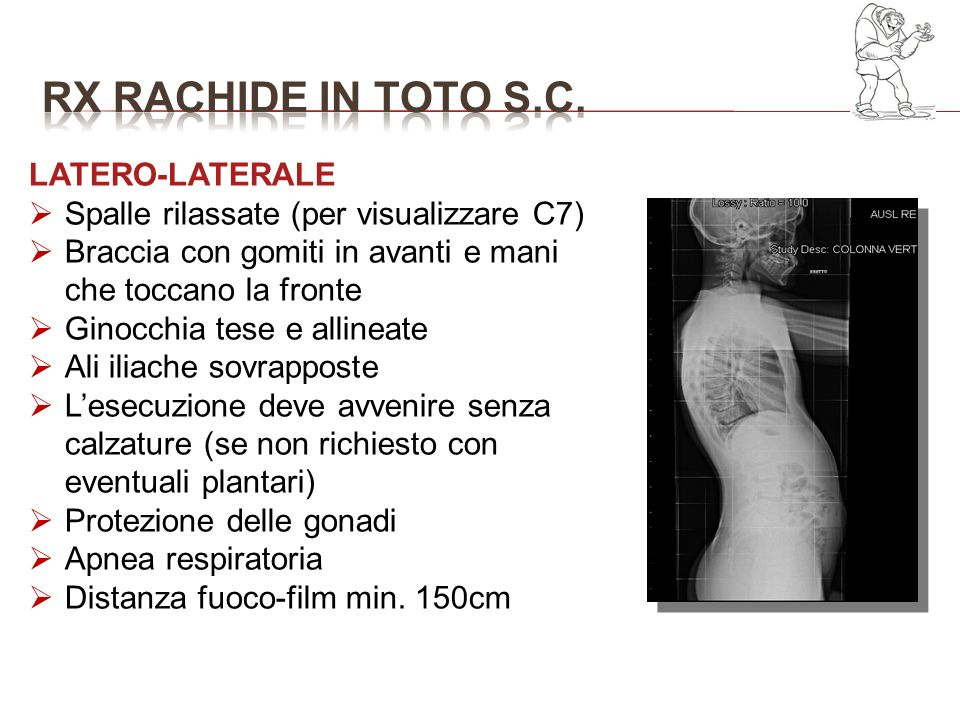 RX RACHIDE IN TOTO S.C. LATERO-LATERALE