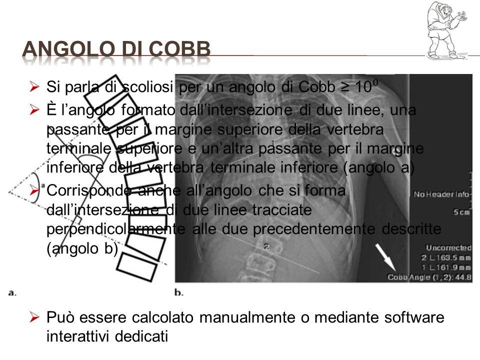 ANGOLO DI COBB Si parla di scoliosi per un angolo di Cobb ≥ 10⁰
