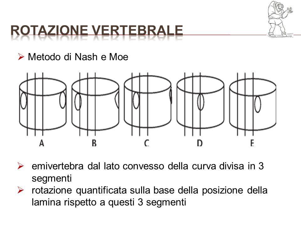 ROTAZIONE VERTEBRALE Metodo di Nash e Moe