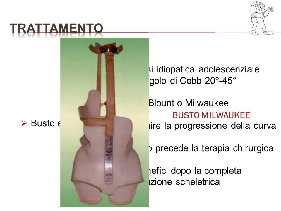 trattamento Scoliosi idiopatica adolescenziale con angolo di Cobb 20º-45° Busto Blount o Milwaukee.