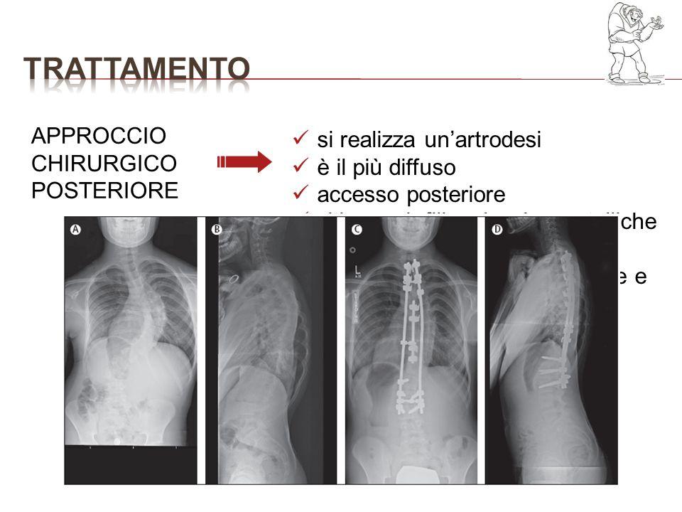 trattamento APPROCCIO CHIRURGICO POSTERIORE si realizza un'artrodesi