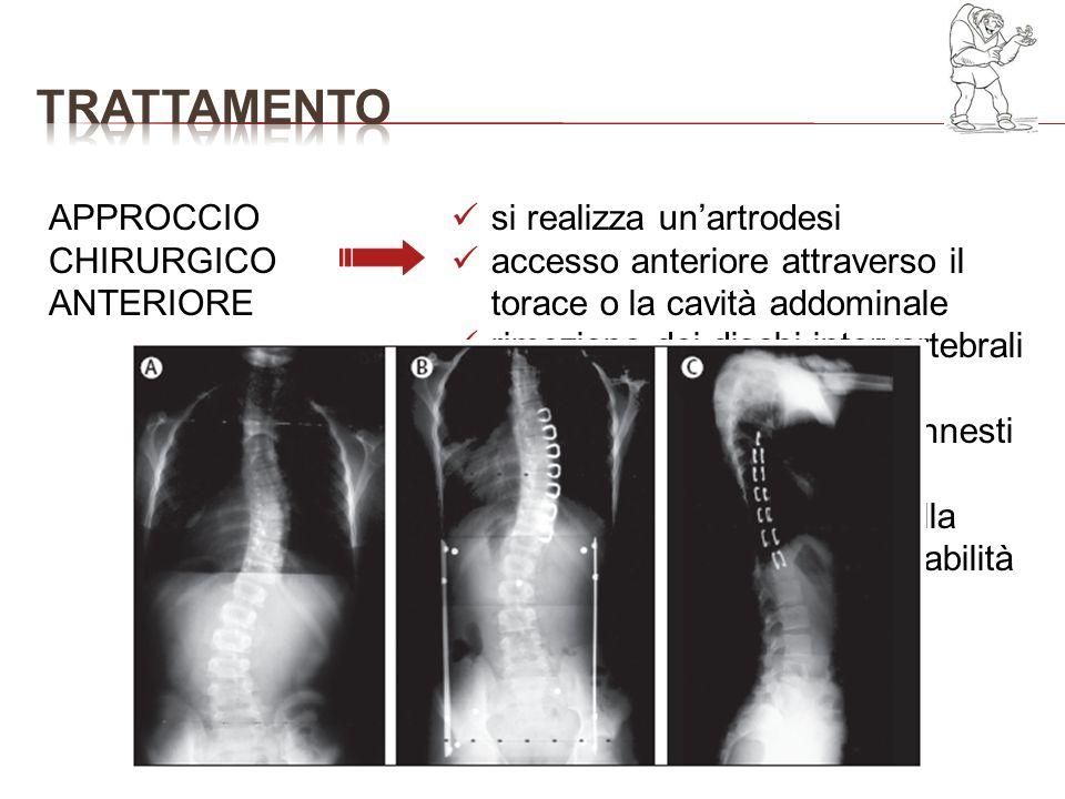 trattamento APPROCCIO CHIRURGICO ANTERIORE si realizza un'artrodesi