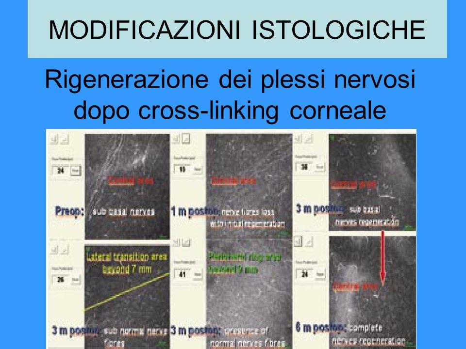 Rigenerazione dei plessi nervosi dopo cross-linking corneale