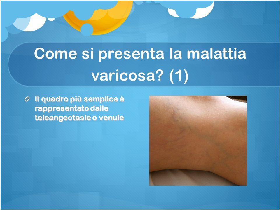 Come si presenta la malattia varicosa (1)