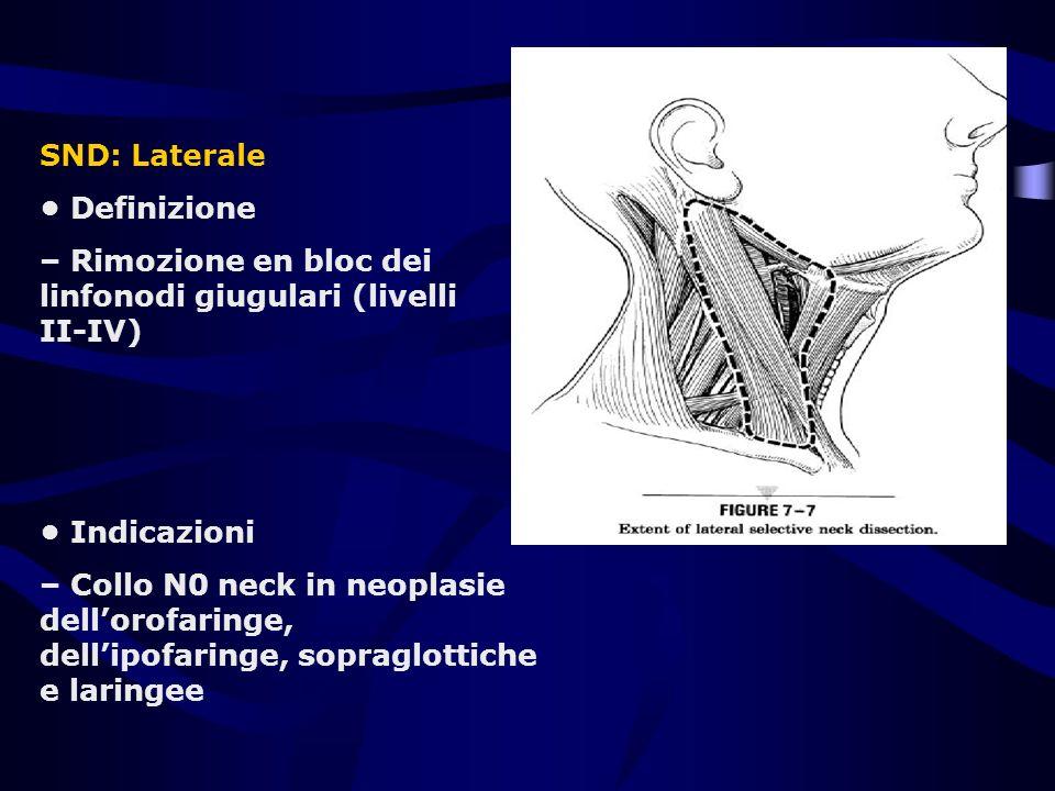 SND: Laterale • Definizione. – Rimozione en bloc dei linfonodi giugulari (livelli II-IV) • Indicazioni.