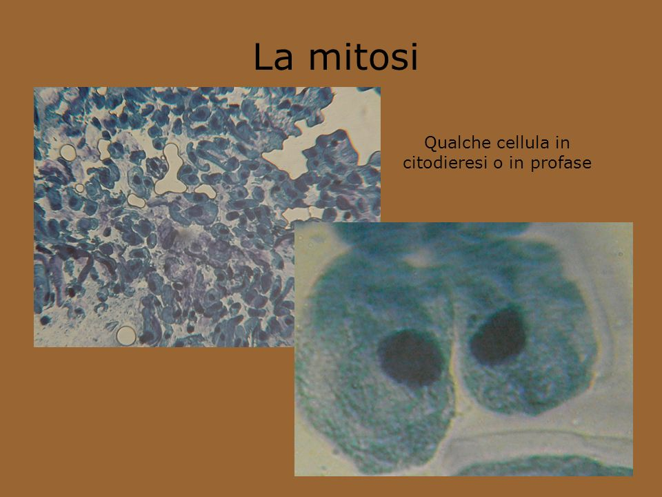 Qualche cellula in citodieresi o in profase