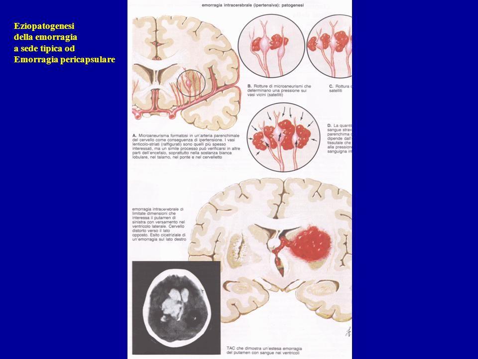 Eziopatogenesi della emorragia a sede tipica od Emorragia pericapsulare