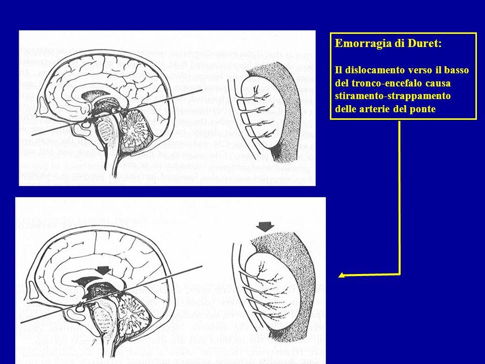 Emorragia di Duret: Il dislocamento verso il basso