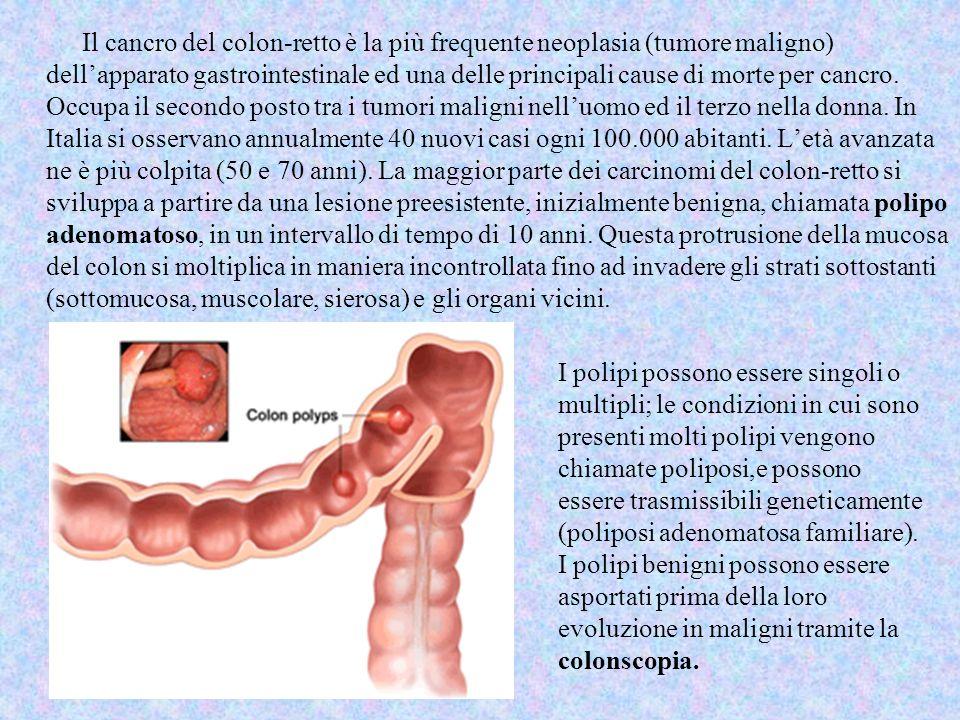 Il cancro del colon-retto è la più frequente neoplasia (tumore maligno) dell'apparato gastrointestinale ed una delle principali cause di morte per cancro. Occupa il secondo posto tra i tumori maligni nell'uomo ed il terzo nella donna. In Italia si osservano annualmente 40 nuovi casi ogni 100.000 abitanti. L'età avanzata ne è più colpita (50 e 70 anni). La maggior parte dei carcinomi del colon-retto si sviluppa a partire da una lesione preesistente, inizialmente benigna, chiamata polipo adenomatoso, in un intervallo di tempo di 10 anni. Questa protrusione della mucosa del colon si moltiplica in maniera incontrollata fino ad invadere gli strati sottostanti (sottomucosa, muscolare, sierosa) e gli organi vicini.