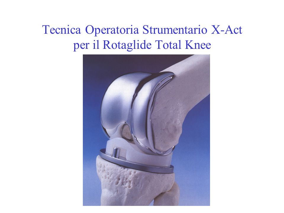 Tecnica Operatoria Strumentario X-Act per il Rotaglide Total Knee