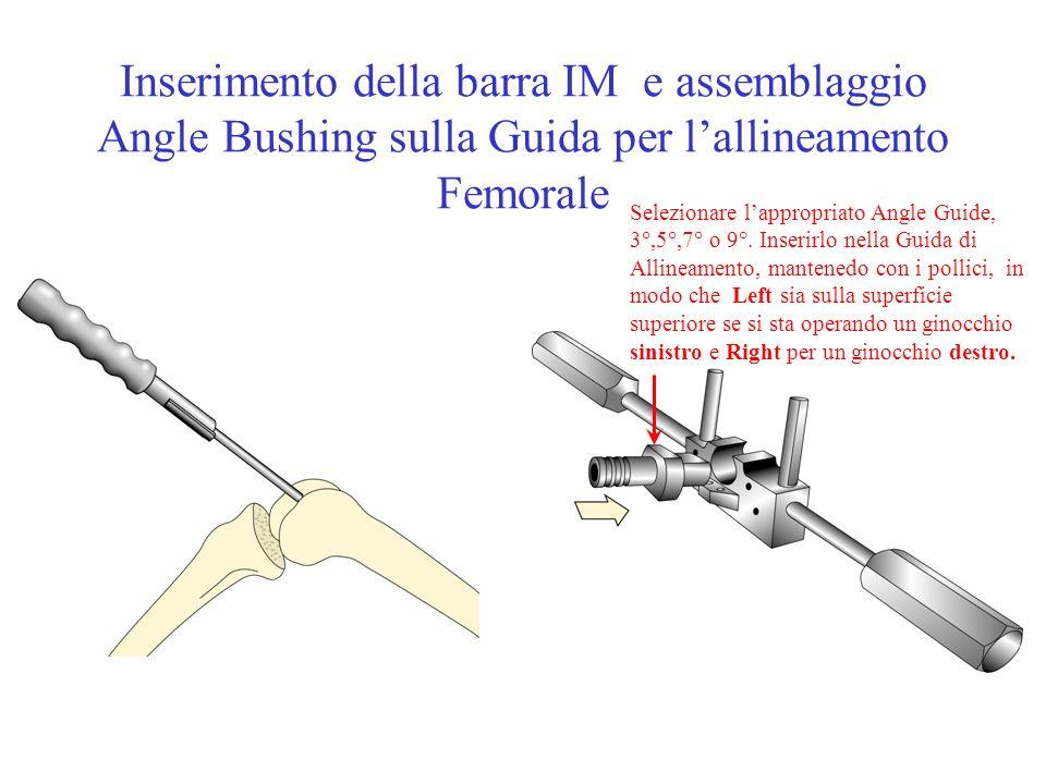 Inserimento della barra IM e assemblaggio Angle Bushing sulla Guida per l'allineamento Femorale