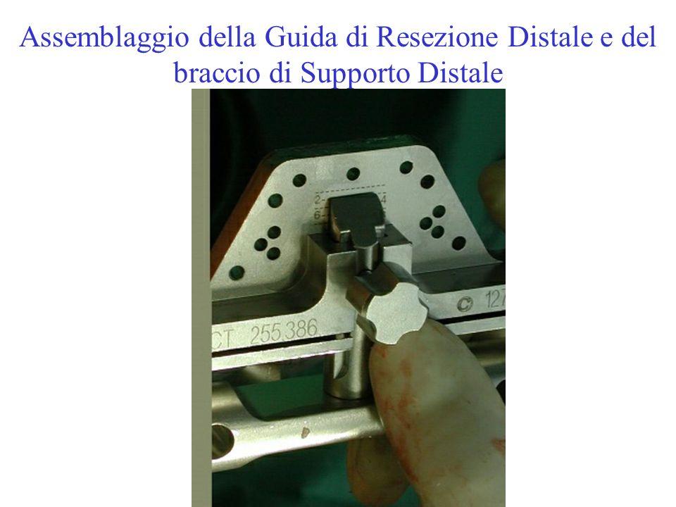 Assemblaggio della Guida di Resezione Distale e del braccio di Supporto Distale