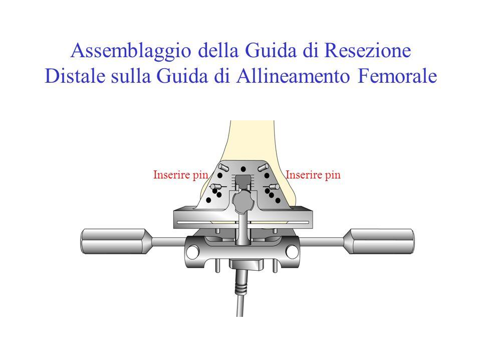 Assemblaggio della Guida di Resezione Distale sulla Guida di Allineamento Femorale