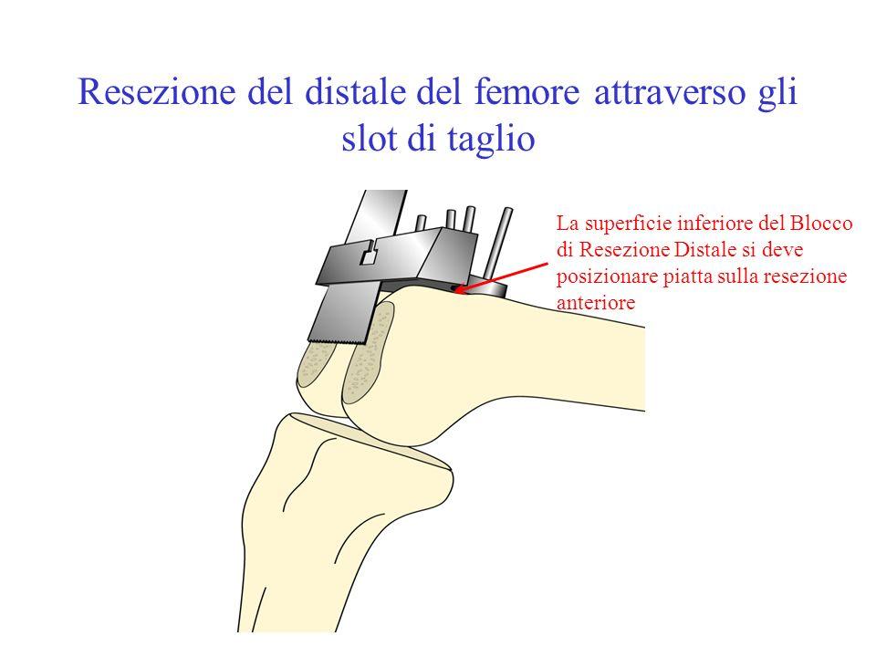 Resezione del distale del femore attraverso gli slot di taglio