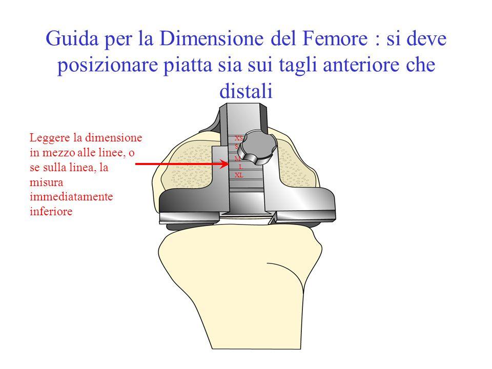 Guida per la Dimensione del Femore : si deve posizionare piatta sia sui tagli anteriore che distali