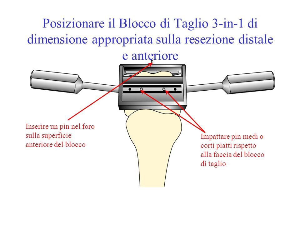Posizionare il Blocco di Taglio 3-in-1 di dimensione appropriata sulla resezione distale e anteriore