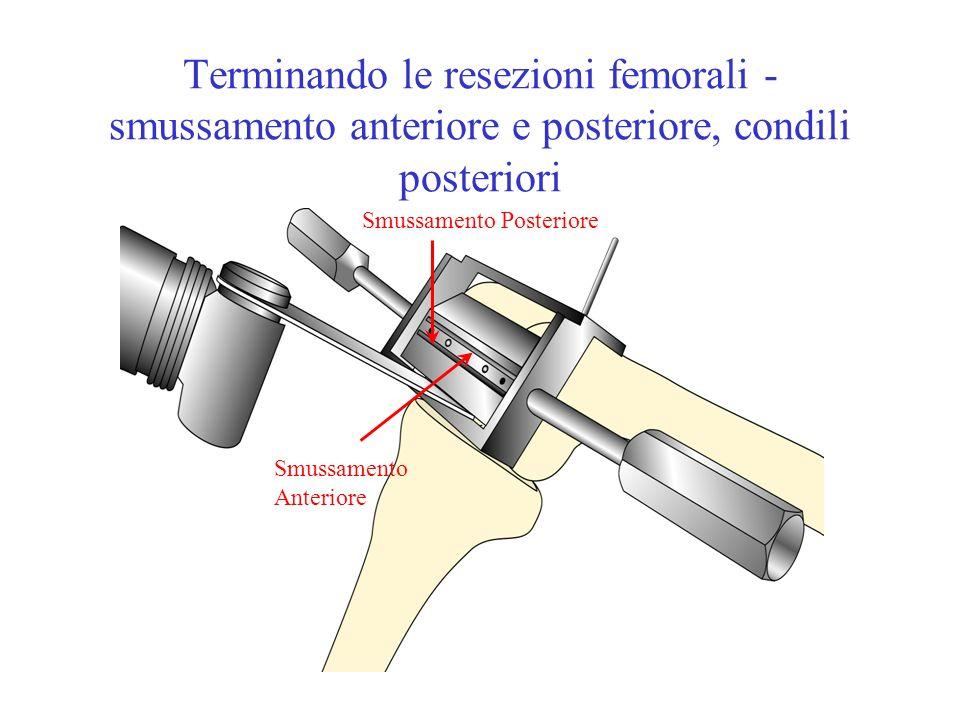 Terminando le resezioni femorali - smussamento anteriore e posteriore, condili posteriori