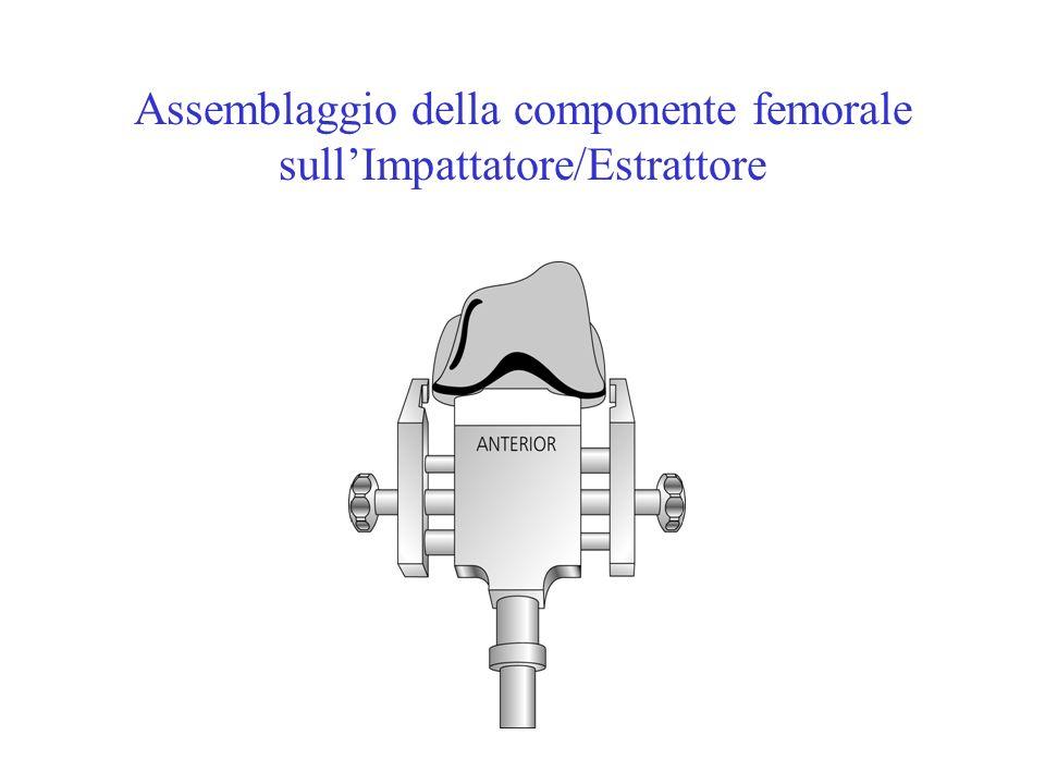 Assemblaggio della componente femorale sull'Impattatore/Estrattore