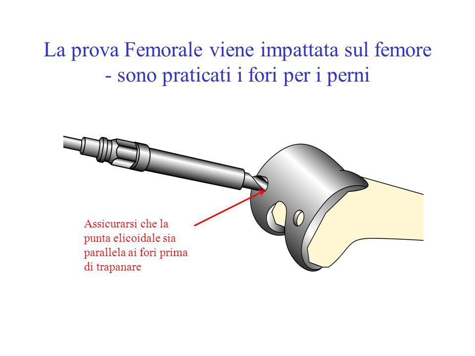 La prova Femorale viene impattata sul femore - sono praticati i fori per i perni