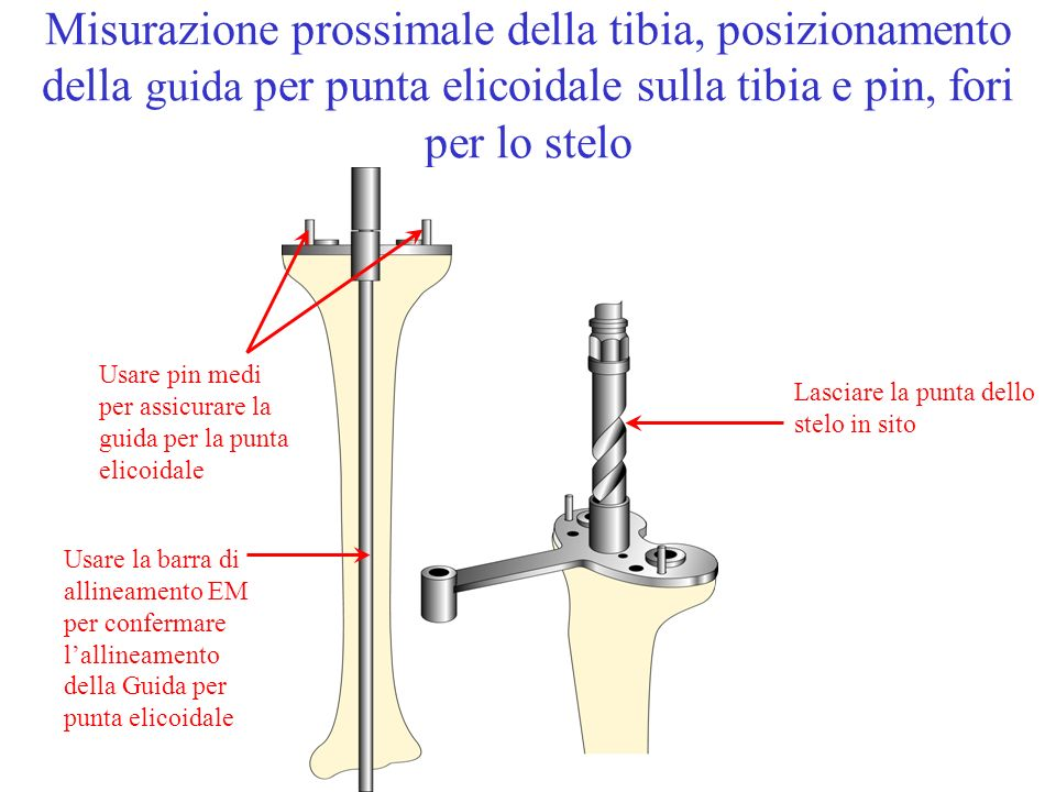 Misurazione prossimale della tibia, posizionamento della guida per punta elicoidale sulla tibia e pin, fori per lo stelo