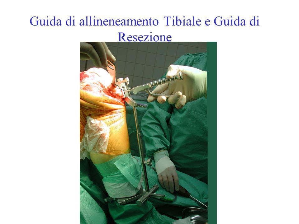 Guida di allineneamento Tibiale e Guida di Resezione