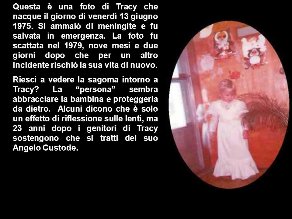 Questa è una foto di Tracy che nacque il giorno di venerdì 13 giugno 1975. Si ammalò di meningite e fu salvata in emergenza. La foto fu scattata nel 1979, nove mesi e due giorni dopo che per un altro incidente rischiò la sua vita di nuovo.