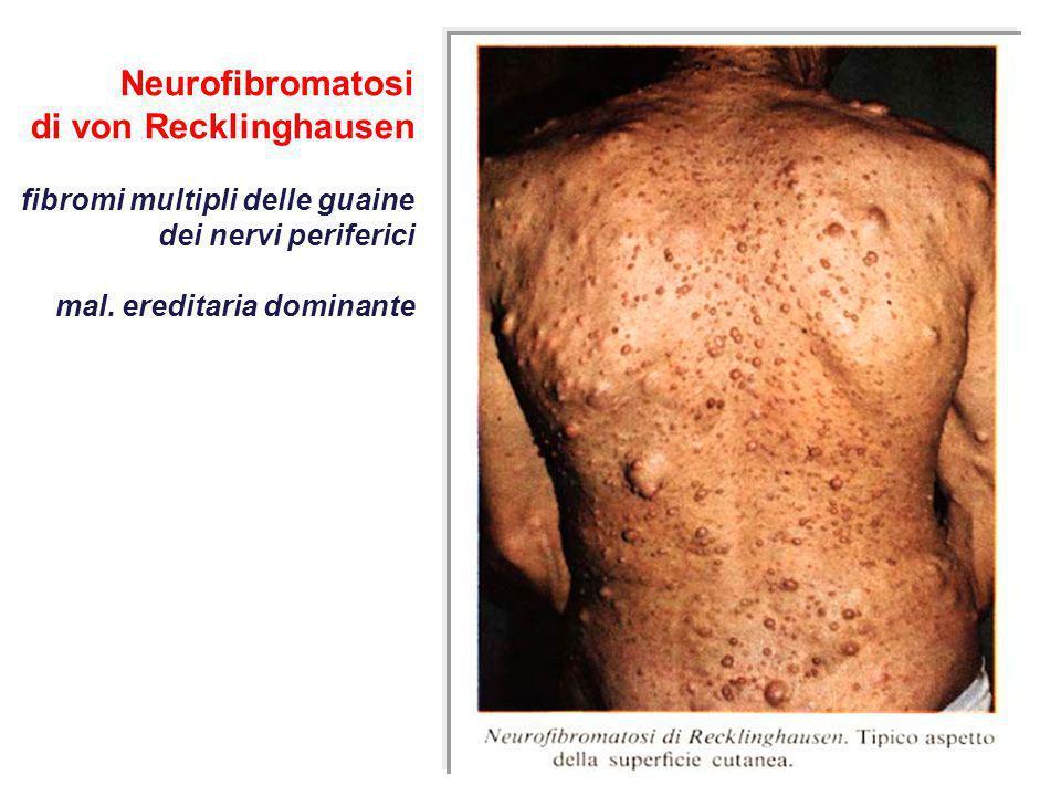 Neurofibromatosi di von Recklinghausen fibromi multipli delle guaine