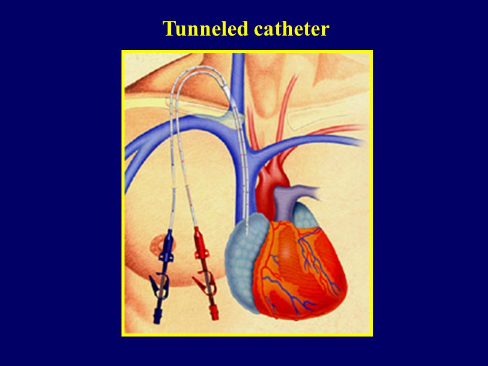Tunneled catheter