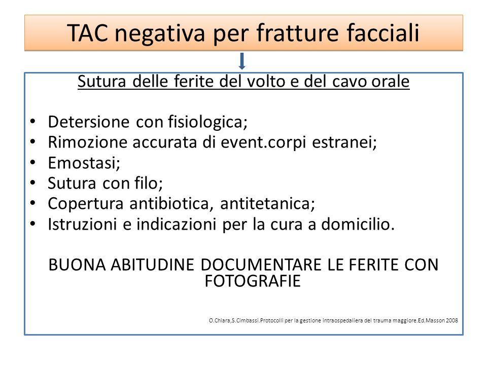 TAC negativa per fratture facciali